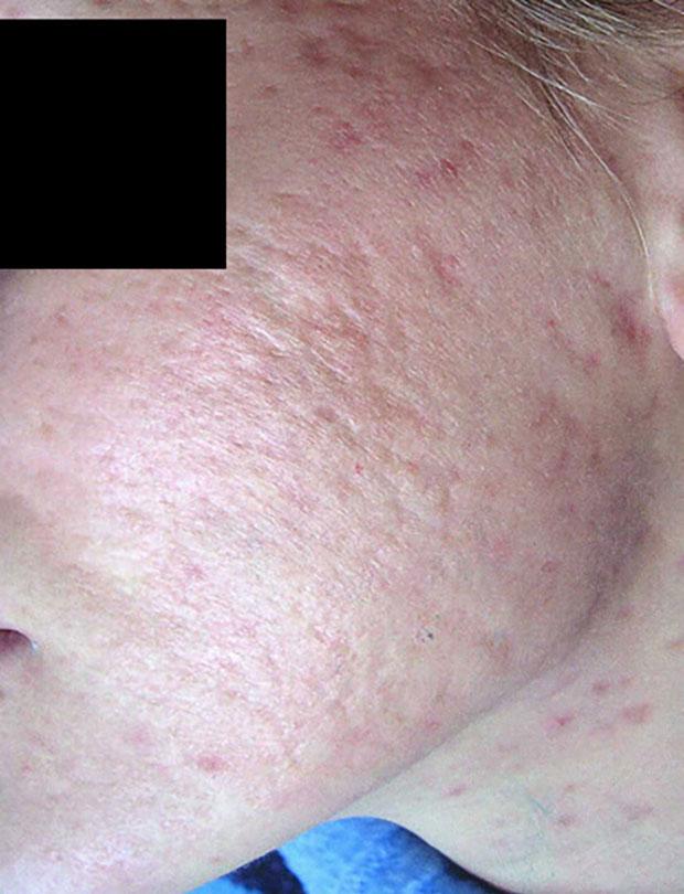 Cura dell'acne - Prof. Antonio Rossi Dermatologo