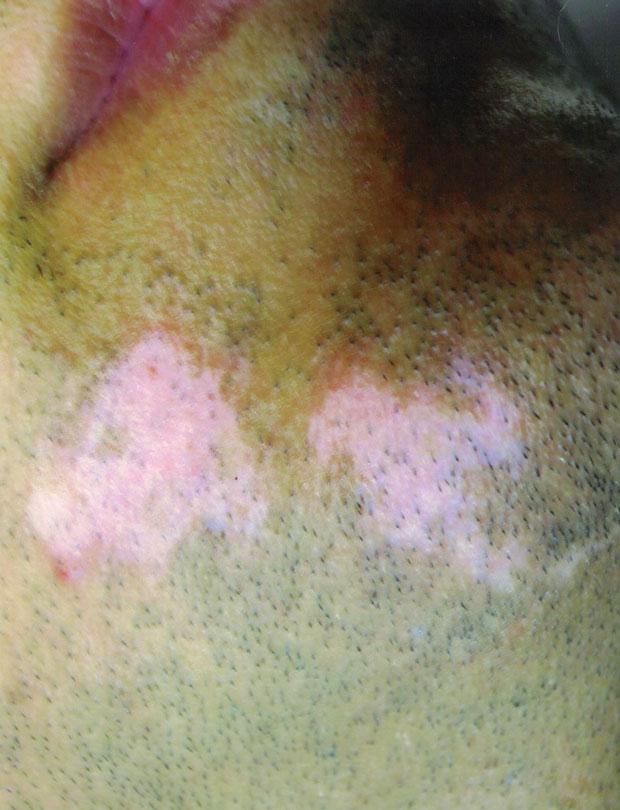Vitiligine - Professor Antonio Rossi Dermatologo