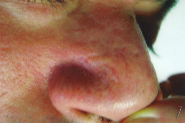 Medicina estetica - Prof. Antonio Rossi Dermatologo
